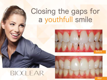Bioclear, Penticton Dental Centre